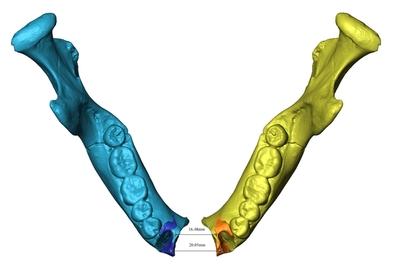 Reconstrucción virtual de la mandíbula ATD6-96 de H. antecessor. En amarillo, el fragmento original