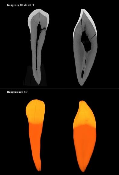 Imágenes 2D y 3D de un diente fósil obtenidos por micor CT.